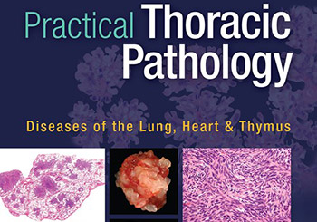 """Livro """"Practical Thoracic Pathology: Diseases of the Lung, Heart, and Thymus"""""""