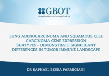 Lung Adenocarcinoma and Squamous Cell Carcinoma Gene Expression Subtypes Demonstrate Significant Differences in Tumor Immune Landscape