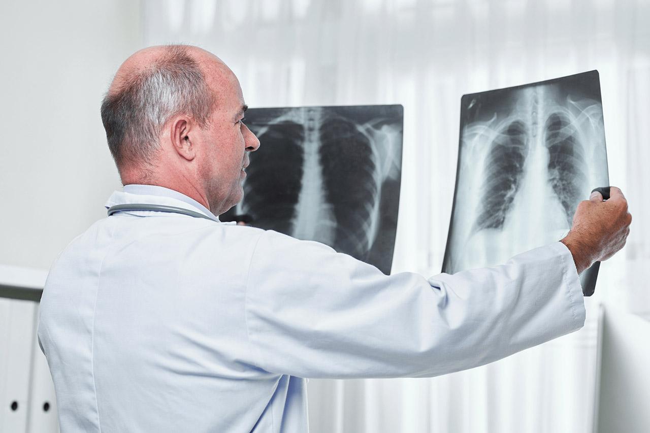 Médico analisando raois-x de tórax